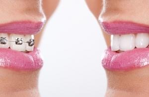 Trat.de ortodoncia con brackets metálicos o de zafiro, estudios y 5 revisiones